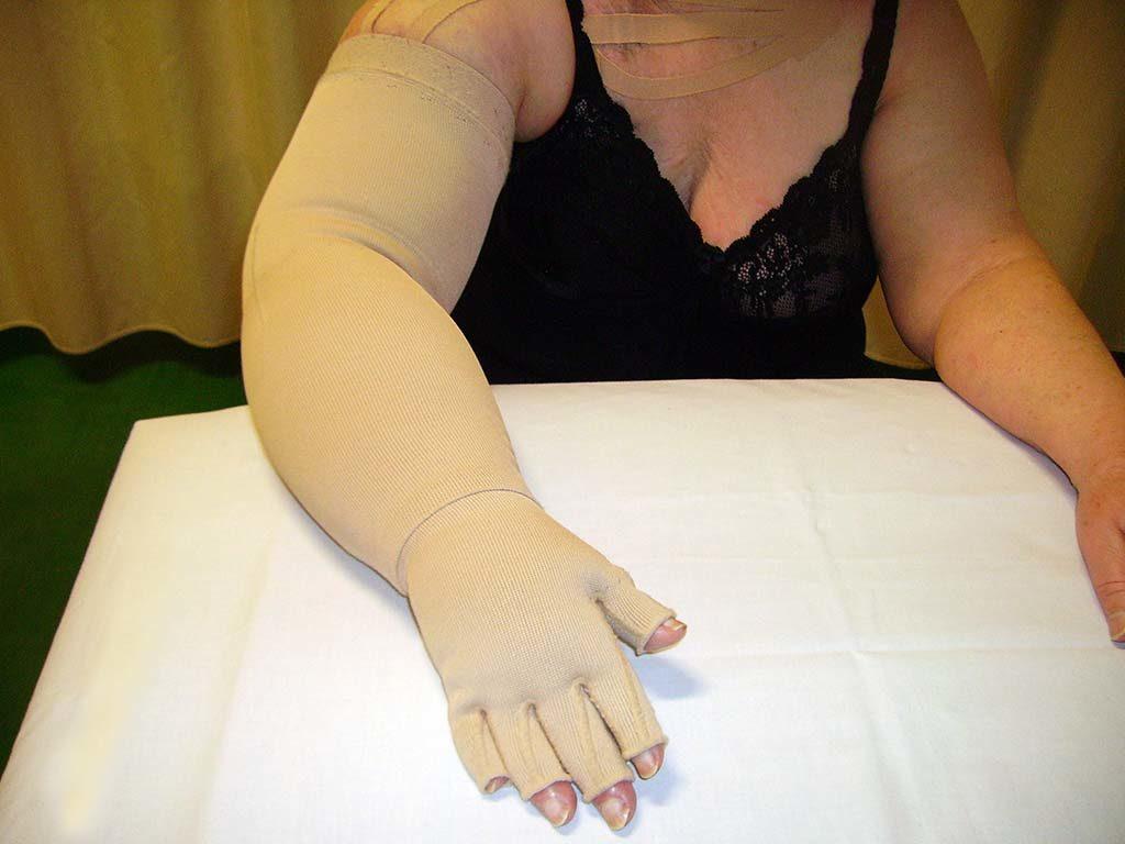 Lympho - Elastocomressione - Bracciale con guanto